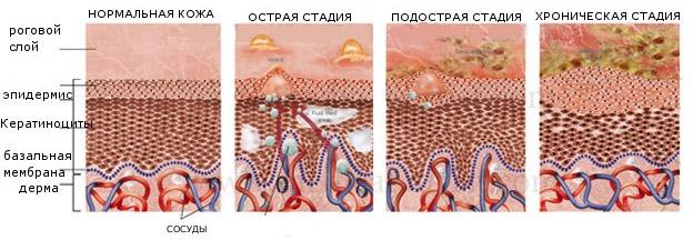 stadii-dermatologicheskogo-zabolevaniya